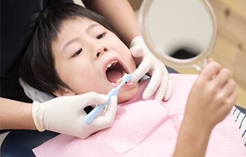 乳歯の虫歯もしっかり治療しておきましょう